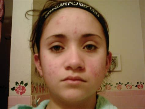 Pimples On Face Dr Oz Acne Home Remedy Best Way To Get