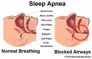 Sleep-apnea-1  Central sleep apnea Sleep Apnea