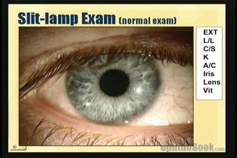 slit l eye exam slit l exam findings bing images