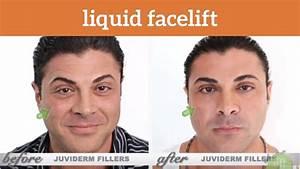 Amir Visits Lift Md Aesthetics For A Liquid Facelift By Dr  Garo Kassabian