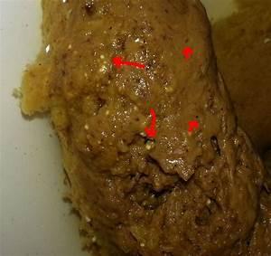 Liver Fluke? at Parasites Support Forum (Alt Med), topic