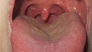 Back Of Tongue Throat Pain Swollen Lymph In Neck White ...