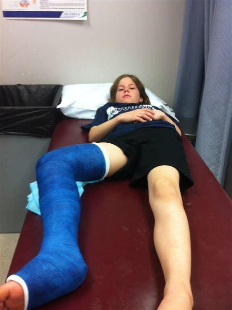 Full Leg Cast Wheelchair So Her Leg Bones Snapped And Flickr