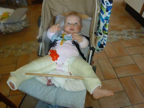 pour r 233 pondre aux mamans qui me posent des questions sur la luxation cong 233 nitale de la hanche