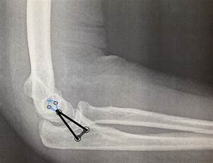 Lateral Ulnar Collateral Ligament Injury  Plri