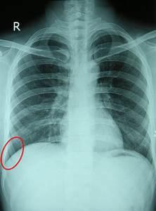 Costodiaphragmatic Recess