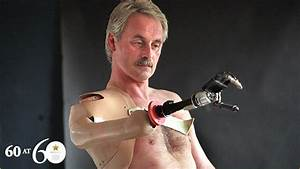 1993: First Bionic Arm