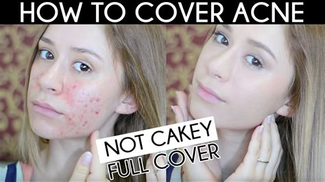 cover acne scar  cakey acne coverage