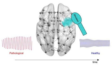 Alzheimers.net grew out of the need to have a social network that will be a respite, a resource and a way to connect with others who share a common bond. New computational tool could help optimize treatment of ...