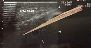 wood. splinter. x-ray. | Concepts - Splinters | Pinterest
