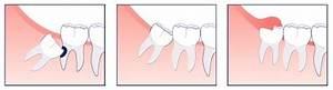 Symptome Dent De Sagesse : les chirurgiens dentistes paris r publique ~ Maxctalentgroup.com Avis de Voitures