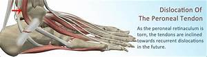 Peroneal Tendon Subluxation  Treatment  Recovery