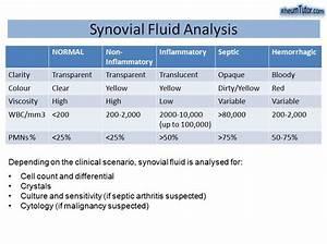 Synovial Fluid Analysis  U00b7 Rheumtutor