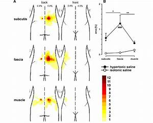 Body Chart  A  Showing Superimposed Pain Distributions