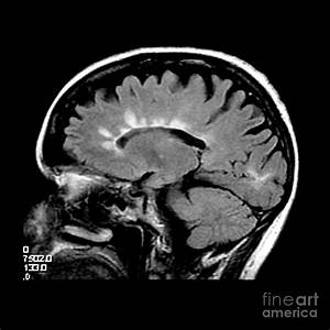 Mri Of Multiple Sclerosis Photograph by Medical Body Scans