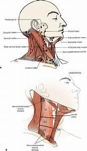 Cervical Lymph Node Biopsy And Scalene Node Biopsy