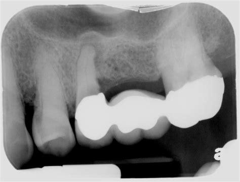 dental bridge  dental implant dentist pasadena tx