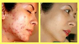 Top 4 Ways How To Get Rid Of Acne Scars Overnight