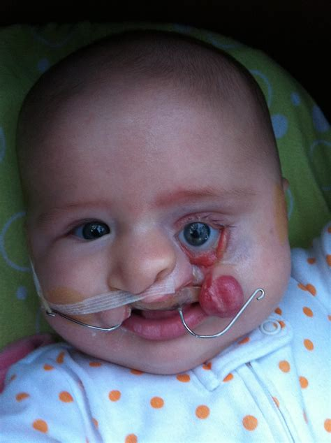 What Its Like Having A Cleft Lip Palate Baby Babies