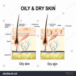 Oily Dry Skin Different Human Skin  Uc2a4 Ud1a1  Ubca1 Ud130 549205528