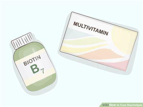 ways  cure onycholysis wikihow