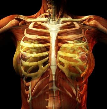 Costochondritis Images Costochondritis Symptoms Causes Treatment And Pictures