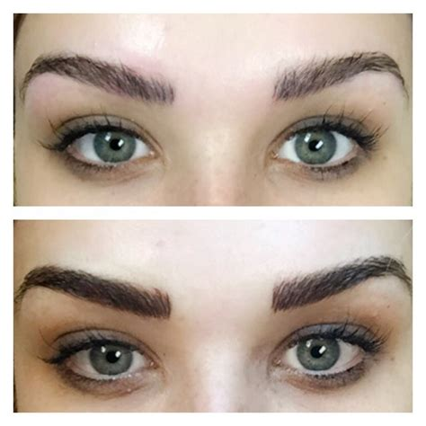 surgical eyebrow microblading treatment juvly aesthetics