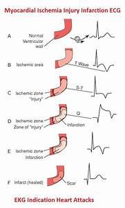 Ischaemic Heart Disease Ecg Changes