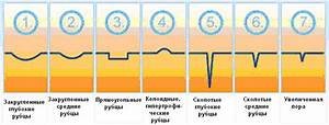 Псориаз лечение мази псориатен