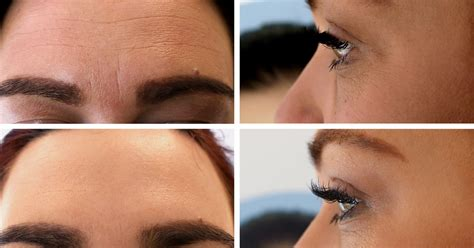 Anti-Wrinkle Treatment at Therapie Clinic UK | Skin Treatment