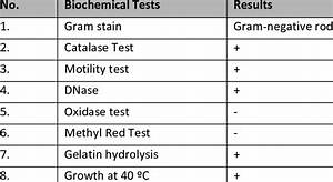 Biochemical Tests For The Bacterial Isolates Download Table