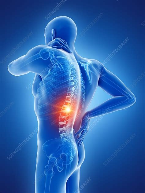 Back pain, conceptual illustration - Stock Image - F025 ...