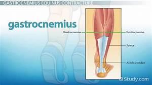 Gastrocnemius Recession  Procedure  Recovery