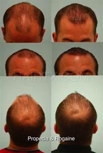 Propecia (Finasteride) Dallas | Hair Growth Medicine Plano, Tx