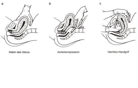 Cytotec C Pathologische Nachgeburtsperiode Schwangerschaftsfahrplan De