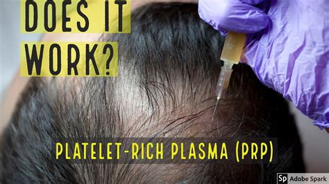 PLATELET-RICH PLASMA (PRP) HAIR LOSS TREATMENT - DOES IT