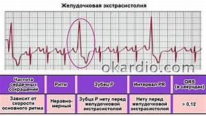 Гипертония аритмия лечение