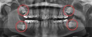 Symptome Dent De Sagesse : dents de sagesse centre dentaire de haute technologie du qu bec ~ Maxctalentgroup.com Avis de Voitures