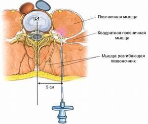Шейный остеохондроз мешки под глазами лечение