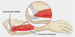 Tennis Elbow - The Complete Injury Guide
