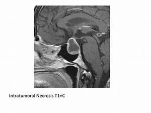 Diagnostic Imaging of the Pituitary Gland