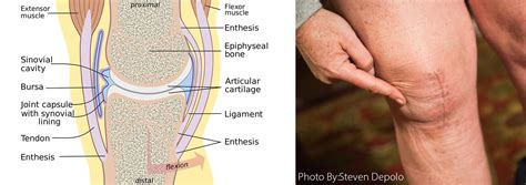 Softening of the cartilage