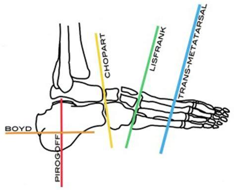 Symes & Partial Foot Prosthetics  P&o Care