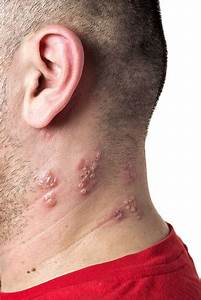 How High is the Risk of Shingles Recurrence?