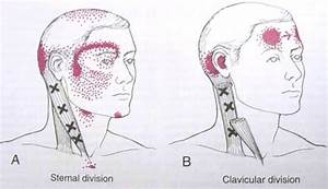 Sternocleidomastoid Trigger Point Diagram The Most Common Cause Of Tension And Migraine