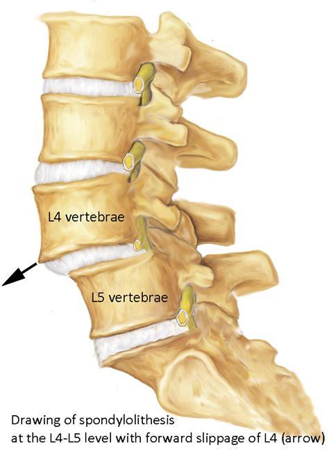 spondylolisthesis treated   illinois spine