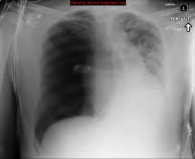 Tension pneumothorax - Image - Radiopaedia.org Pneumothorax