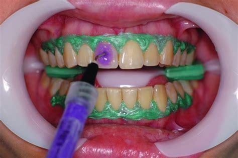 Uma Nova abordagem para a técnica de clareamento dental em