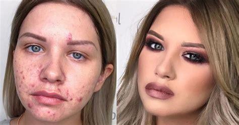 Une jeune femme atteinte de vitiligo a le courage de montrer son visage sans maquillage