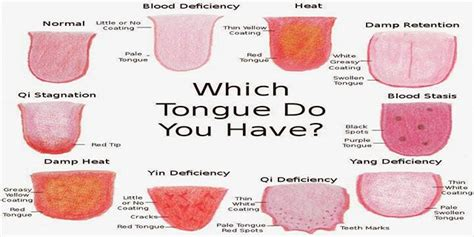 what color should your tongue be a single glance at your tongue can provide tell tale signs